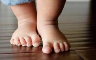 Вальгусная стопа у ребенка: лечение и профилактика деформации