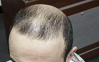 8 причин, почему мужчины лысеют