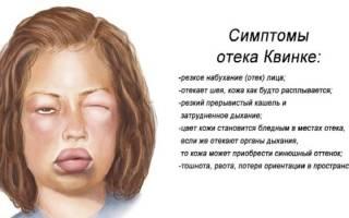 Отек квинке – симптомы и лечение в домашних условиях
