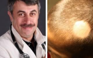 8 причин выпадения волос у детей, о которых должна знать каждая мама