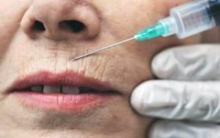 Как убрать морщины над верхней губой – средства и процедуры для женщин