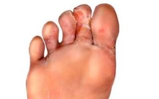 Как лечить грибок между пальцами ног народными средствами