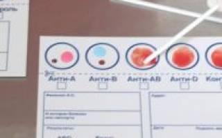 Как узнать свою группу крови