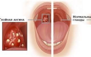 Чем лечить ангину в домашних условиях эффективно