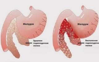 Лечение лекарственными препаратами поджелудочной железы при симптомах заболеваний