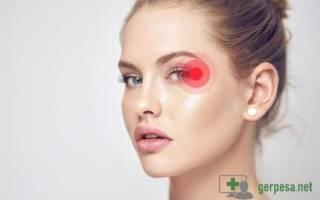 Герпес на глазу: симптомы и лечение