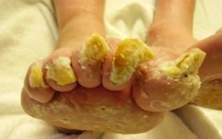 Болезни ногтей на ногах грибковые и негрибковые – симптомы и характерные признаки, методы лечения