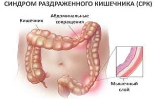 Диета при раздраженном кишечнике с болевым синдромом: меню для лечения