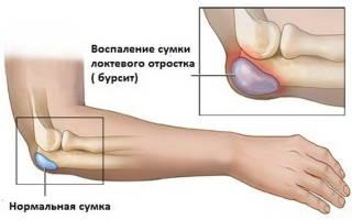 Бурсит локтевого сустава: симптомы и лечение заболевания