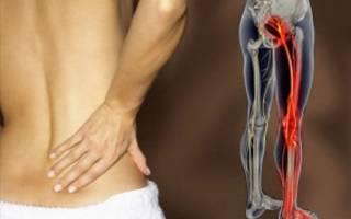 Воспаление седалищного нерва – симптомы и лечение медикаментозными и народными средствами