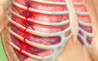 Перелом ребра – лечение в домашних условиях и режим