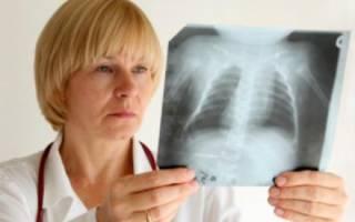 Причины воспаления легких у детей и взрослых – симптомы и лечение, осложнения и профилактика