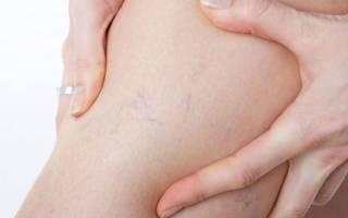 Народные средства и методы лечения варикозного расширения вен нижних конечностей в домашних условиях