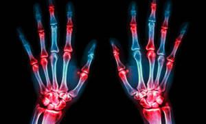 Средства от боли в суставах: лучшие препараты и народные рецепты