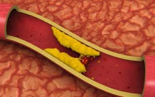Что делать при повышенном холестерине, как лечить