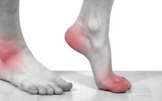 Артроз голеностопного сустава – причины возникновения, симптомы, диагностика, степени заболевания и лечение