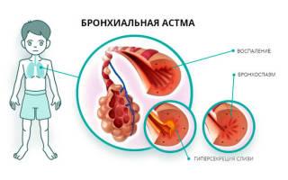 Астма – симптомы у взрослых и первые признаки