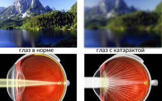 Катаракта глаза – что это такое: симптомы и лечение
