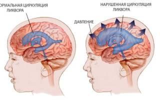 Внутричерепная гипертензия у детей – симптомы, диагностика, препараты для лечения и профилактика
