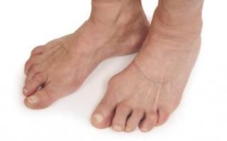 Артрит стопы – причины возникновения, симптомы, диагностика, методы лечения и проифлактики