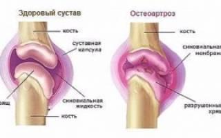 Что такое остеоартроз суставов – причины, симптомы и лечение