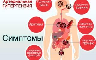 Препараты для расширения сосудов головного мозга