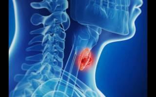 Причины появления ощущения комка в горле – что это может быть, диагностика и лечение
