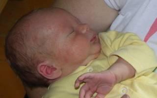 Причины и лечение гормональной сыпи у новорожденных
