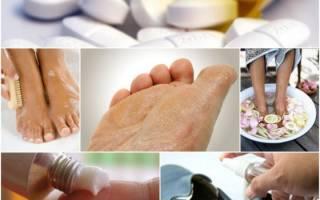Микоз стоп – причины, первые признаки, симптомы, медикаментозное и народное лечение
