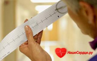 Аритмия сердца – причины и признаки болезни. Симптомы и лечение