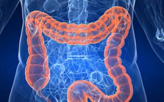 Симптомы и лечение дискинезии кишечника