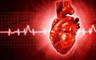 Операция по стентированию сосудов сердца