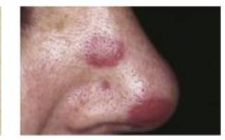 Саркома Капоши – симптомы и стадии. Виды и диагностика при ВИЧ