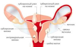 Миома матки – что это за опухоль: симптомы и лечение