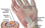 Синдром запястного канала – причины возникновения и факторы риска