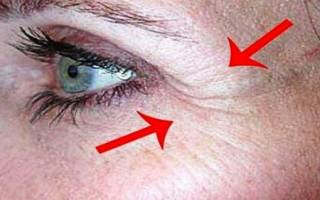 Как убрать морщины под глазами быстро и эффективно