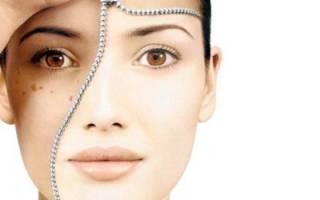 12 натуральных средств, чтобы отбелить кожу быстро