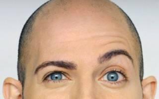 Средства от облысения у мужчин: чем лечить алопецию