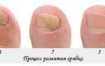Как избавиться от грибка на ногах – способы лечения ногтей и кожи медикаментозными и народными средствами