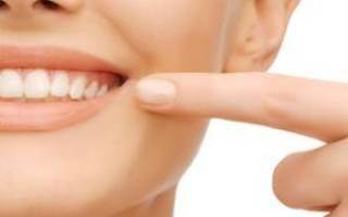 Заеды в уголках рта – причины и лечение в домашних условиях
