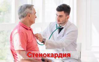 Стенокардия – что это такое, симптомы и лечение болезни сердца