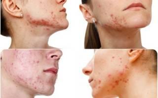 6 советов дерматолога, как можно и нельзя избавляться от прыщей