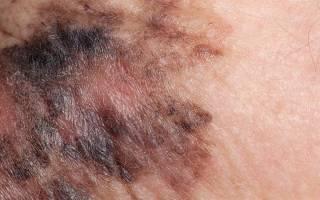 Рак кожи начальная стадия – фото