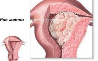 Признаки злокачественной опухоли матки – первые проявления, симптомы, диагностика, стадии и лечение