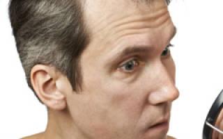 Причины сильного выпадения волос – лечение косметическими и народными средствами, процедурами и диетой